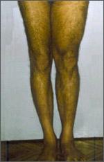 Esito di Poliomielite - Prima